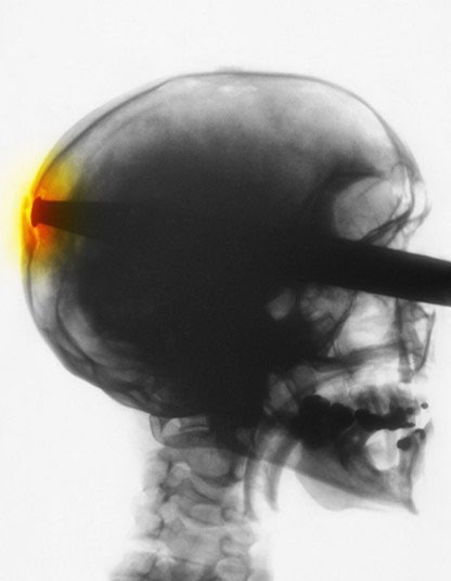 خارق العاده ترین عکس های رادیولوژی در جهان