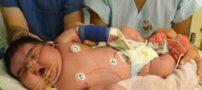عکس هایی از چاق ترین نوزادان جهان