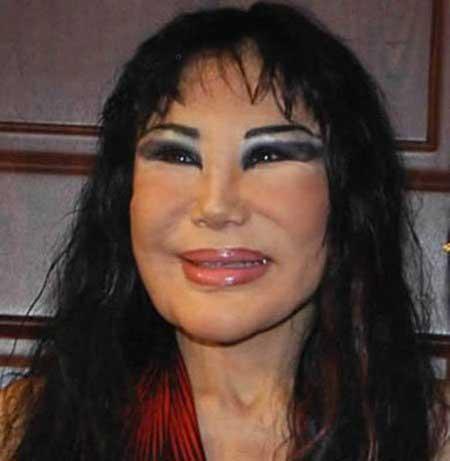 متفاوت ترین جراحی زیبایی روی زنان (عکس)
