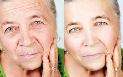 تکنیکهایی برای مراقبت از پوست صورت و گردن