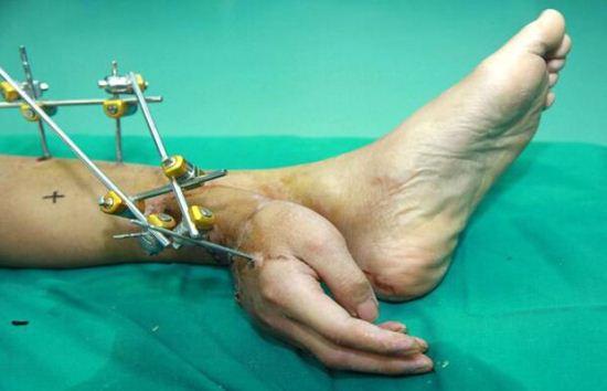 پزشکانی که دست قطع شده را به پا پیوند زدند + عکس