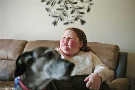 این دختر در هر هفته یک کیلو وزنش زیاد می شود
