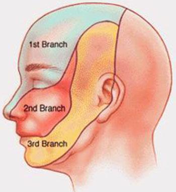 بیماری درد عصب سه قلو