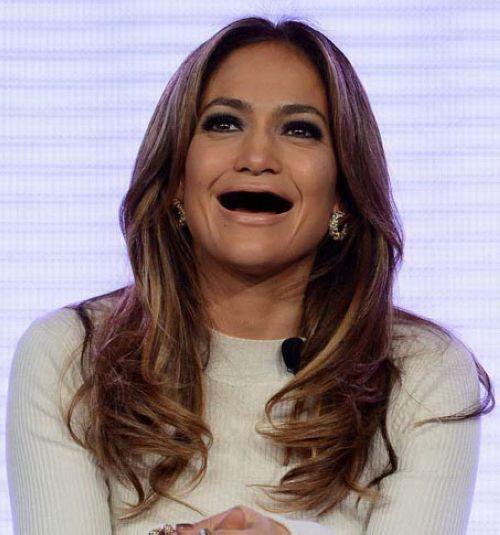 افراد مشهور جهان دندان هایشان را کشیدند (تصویری)