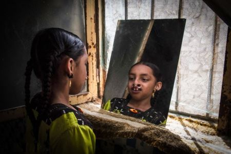 دختری عجیب که روی دماغش دندان دارد (عکس +18)