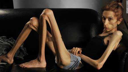 اندام وحشتناک زنی با بیماری بی اشتهایی عصبی (عکس)