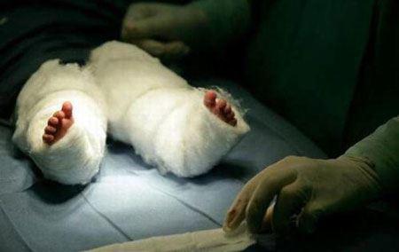 اندام دختر معروف به پری دریایی بعد از جراحی (عکس)