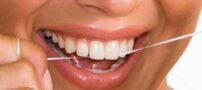نکاتی در مورد استفاده درست از نخ دندان