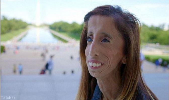 زشت ترین زن دنیا را بشناسید + عکس
