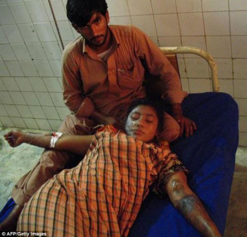 اسیدپاشی بر روی بازیگر زن پاکستانی !+عکس