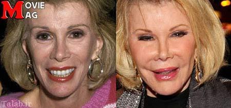 ستاره هایی که جراحی زیبایی آنها را زشت تر کرد + عکس