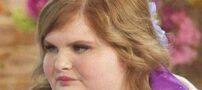 چاقی در زنان چه خطراتی دارد؟