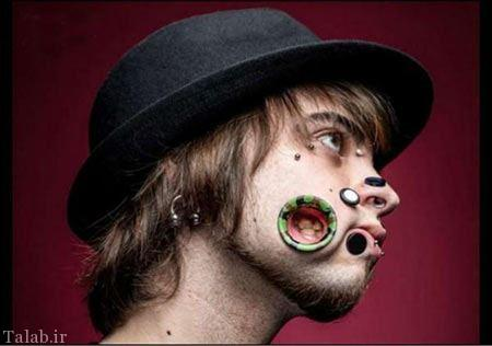 صورت سوراخ سوراخ وحشتناک این پسر (عکس)