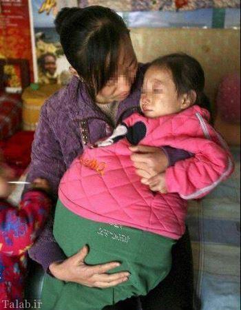 دختر 4 ساله که شبیه زن های حامله است + عکس