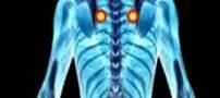 مضررات بودن پلاتین در استخوان