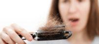 عوامل موثر بر ریزش مو در آقایان و خانم ها