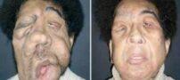 تصاویر جالب از جراحی های وحشتناک زیبایی صورت (18+)