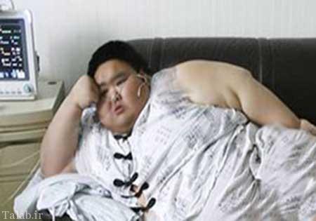 عمل جراحی زن چاق چینی (عکس)