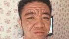 مردی که یک شبه 50 سال پیرتر شد (عکس)