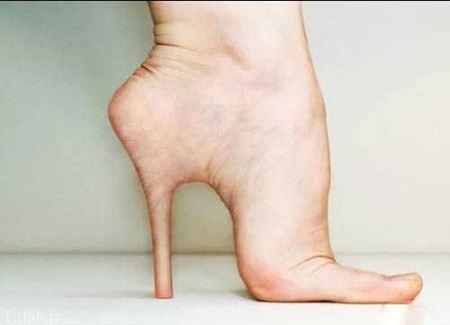عکس های باورنکردنی جراحی پاشنه دار کردن پای زنان