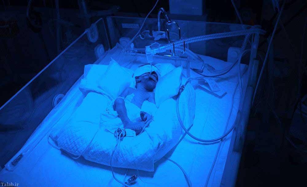 تصاویر جالب از تولد چهارقلو در کرج