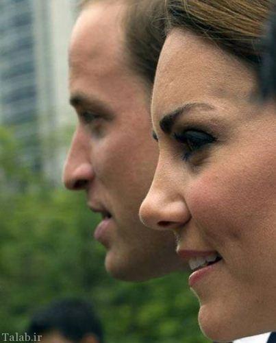 زنی که زیباترین بینی دنیا را دارد (عکس)