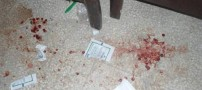 درگیری خونین پدر دانش آموز با معلم در فارس (عکس)