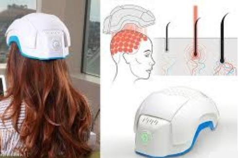 طراحی کلاهی برای درمان تاسی مو