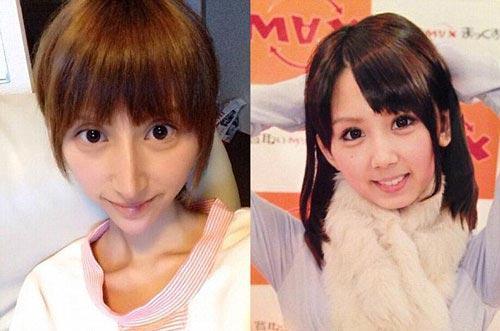 تصاویری از بازیگر ژاپنی بعد از جراحی زیبایی