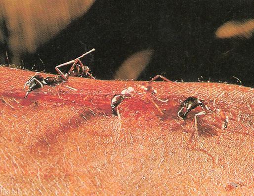 مورچه های بخیه زن را می شناسید؟ (عکس)