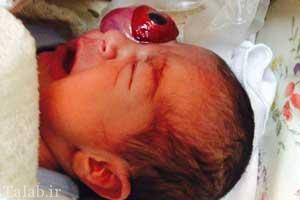 متولد شدن نوزادی با چشم بیرون از حدقه در اصفهان (عکس 18+)