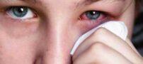 به لوازم آرایشی حساسیت دارید؟