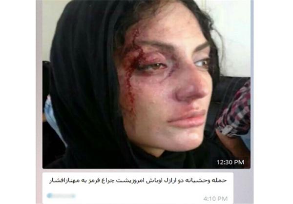 ماجرای حمله اراذل و اوباش به مهناز افشار پشت چراغ قرمز + عکس