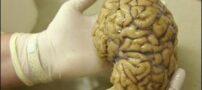 درمان خنده دختر 6 ساله به دست پزشکان حاذق