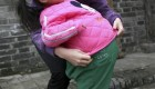 بیماری عجیب این دختر بچه با شکمی مانند توپ