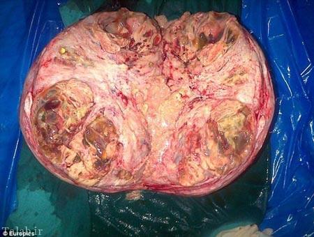 تصاویری از تومور خطرناک در رحم یک زن