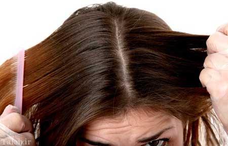 با شوره زدن مو چه باید کرد؟