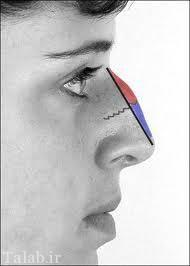قبل از جراحی بینی به این نکات توجه کنید