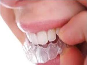 دندان دردهایی که علتش را نمی دانید ؟!