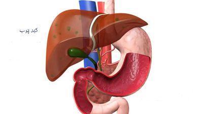 بیماری کبد چرب را بیشتر بشناسید