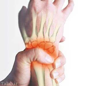پیشگیری از درد مفاصل در فصل زمستان