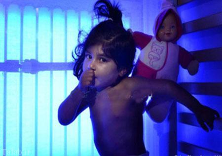 دختری که بدون تابیدن نور آبی می میرد + عکس