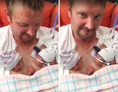 دو قلویی که در هنگام تولد دنیا را متحیر کردند