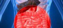 بیماری سلیاک و راه های درمان آن