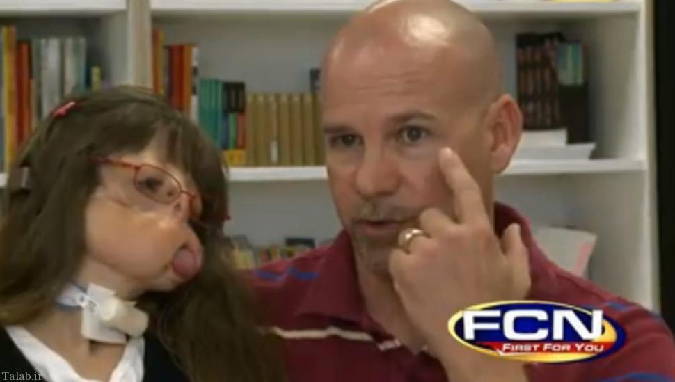 دختری که مادر زادی بدون چهره متولد شده بود 11 ساله شد