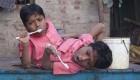 تصاویری از دو برادر که از کمر به هم چسبیده اند