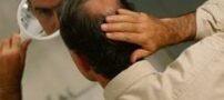ریزش موی مردانه چگونه است ؟