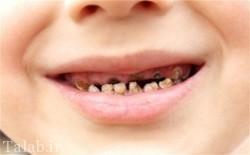 درمان پوسیدگی دندان با لیزر