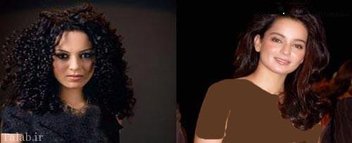 تصاویری از چهره قبل و بعد از عمل ستارگان بالیوود