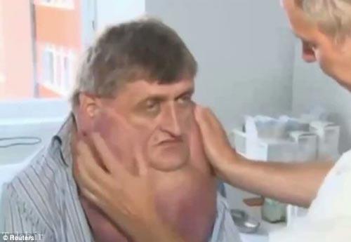 عمل برداشتن تومور 6 کیلویی یک مرد با موفقیت انجام شد